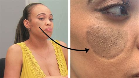 Dog Bite Victim Has Pubic Hair Growing on Her Face | E! News