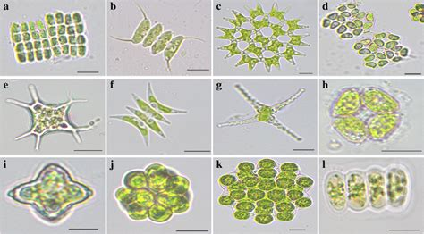 Forensic studies of phytoplankton ecology of two water